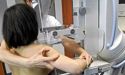 El Programa de Detección Precoz de Cáncer de Mama realizará 8.600 mamografías en octubre