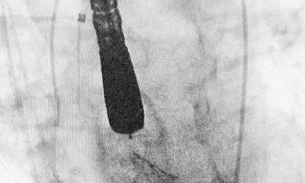 El Hospital Universitario de Badajoz, pionero en España en implantar una nueva válvula aórtica